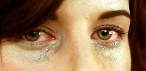 What can i do for itchy eyes from allergies