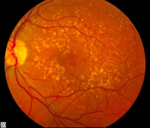 Intermediate_age_related_macular_degeneration